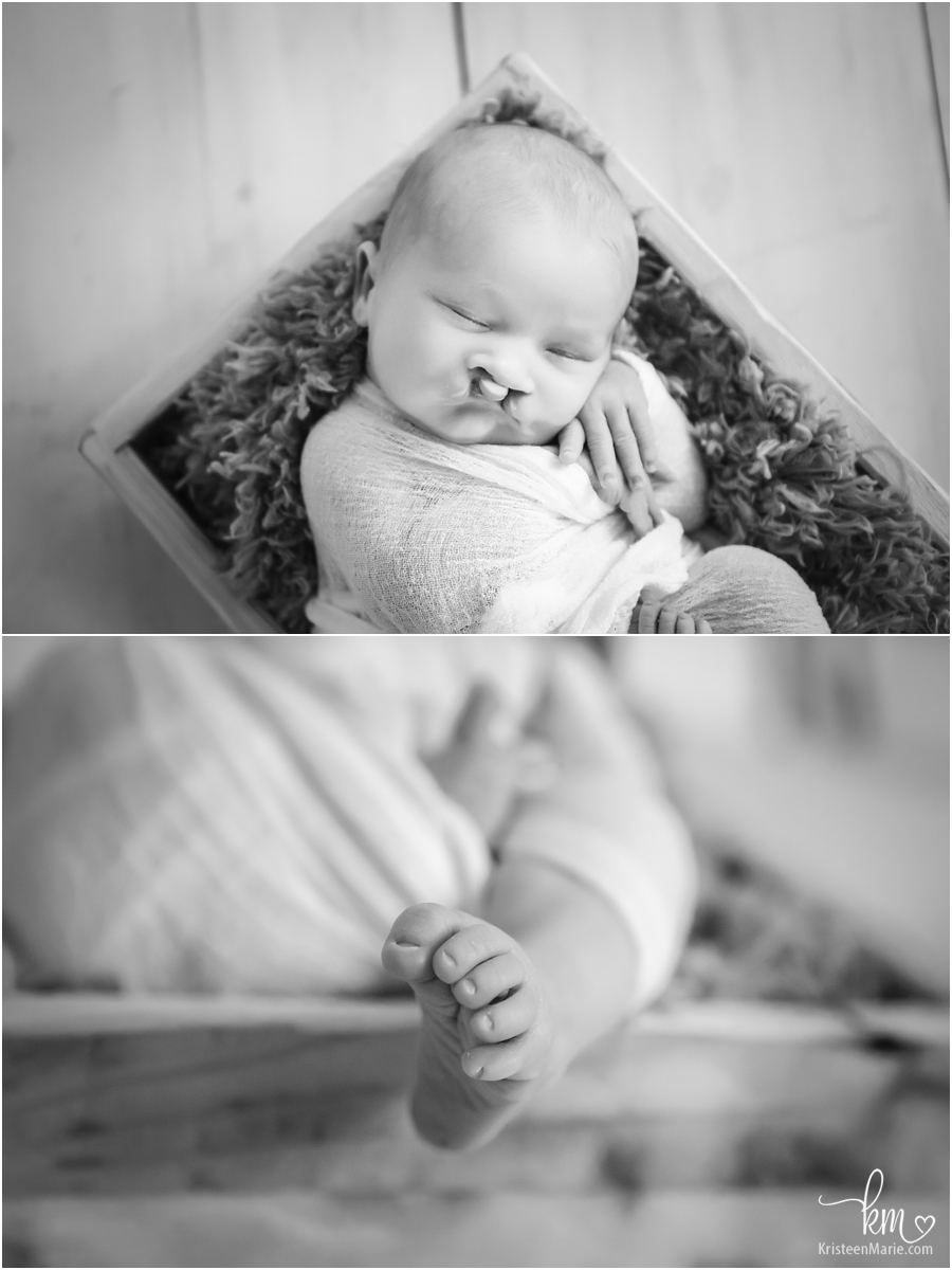 black and white pictures of newborn baby with cleft lip